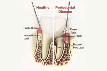 Gums - Periodontal Disease
