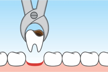 Tooth Extractions - Oral Surgery